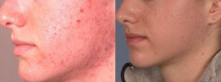 Skin Peel Results for Acne Problem