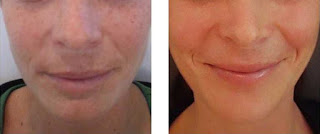 After Skin Peel Treatment for Lower Face Age Spots