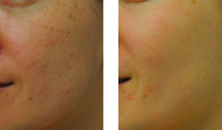 Results After Skin Peel Treatment for Age Spots