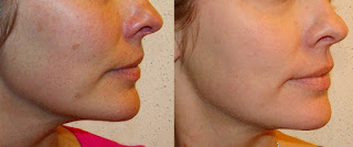 Before and After Skin Peel (TCA) for Hyperpigmentation