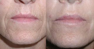 Reduce Wrinkles and Fine Lines after Skin Peel Treatment