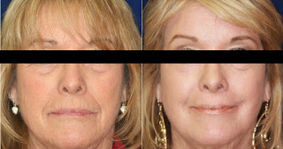 Results after Chemical Peel for Wrinkle Problems
