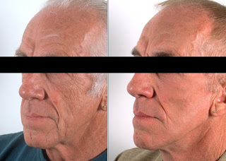 Before and After Skin Peel Therapy