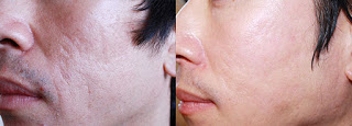 Results after Subcision for Acne Scarring