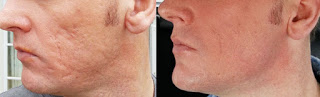 Results on the Cheek after Subcision Treatment