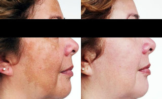 Bafore and After PRP Treatment