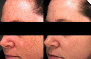 Results After PRP Therapy for Age Spots