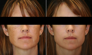 After Platelet Rich Plasma Injections for Brownspots