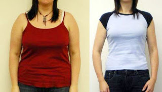 body shape results after oral weight loss medication