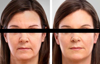 Platelet Rich Plasma Therapy to Reduce Wrinkles