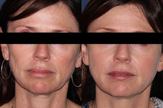 Results of PRP Therapy to reduce wrinkles and fine lines