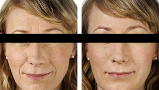Wrinkle Reductions with PRP treatments