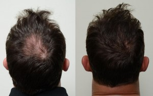 Biofibre Hair Implant Results