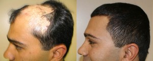 Hair Implant with Biofibre