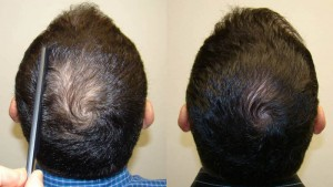 Before and After Biofibre Hair Implant