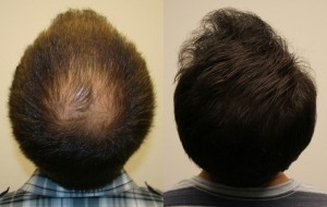 Biofibre Hair Implant to Tackle Baldness