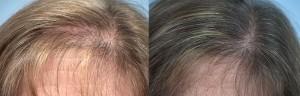 Biofibre for Female Baldness Issue