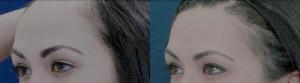 Female Hair Loss Biofibre Treatment
