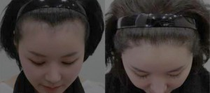 Results after iofibre Hair Implant