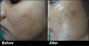 carbon laser peel for skin whitening