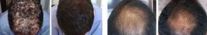 Results of Hair Loss Medicine