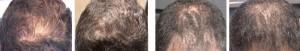 Hair Loss Oral Medication