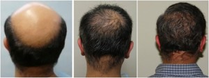 FUE Hair Transplant for Male Pattern Baldness