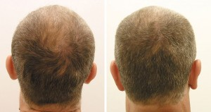 prp injection for hair loss therapy