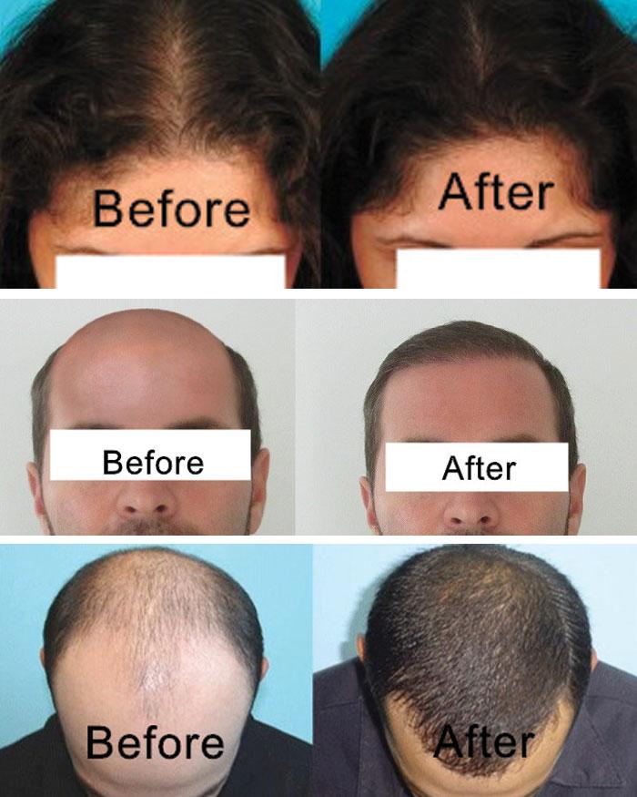 iGrow Laser for Hair Loss Solution