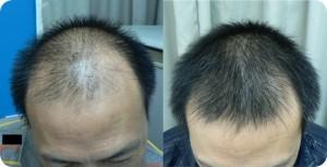 LED Light Treat Balding