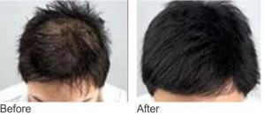 non invasive hair loss solution mesotherapy
