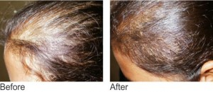 non surgical hair treatments - mesotherapy