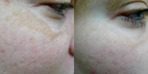 q Switch Skin Lightening