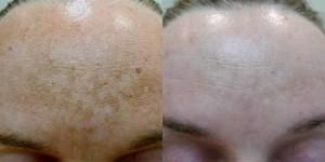 q Switch Skin Lightening on Forehead