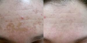 q switch skin lightening fro pigmentation