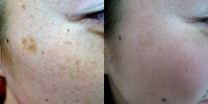 q switch skin lightening for age spots