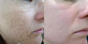 q switch skin lightening for hyperpigmentation