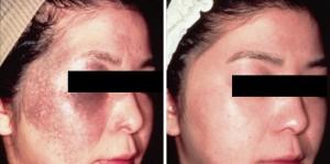 q switch skin lightening for severe blemishes