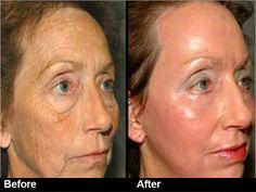 stem cell skin lightening as anti aging treatment