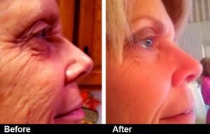stem cell skin brightening & reduce wrinkles