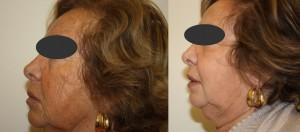 stem cell skin brightening & reduce fine lines