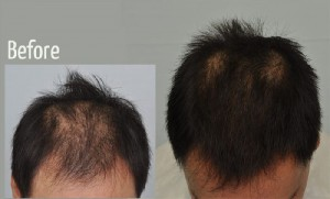 Results of PRP Treatment Hair
