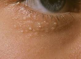 Milia or better known as Oil Seed Issues, cure using CO2 Laser treatment