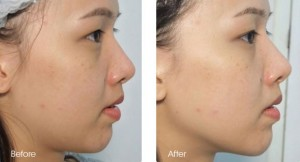 sygmalift-double-chin-reduction-before-after
