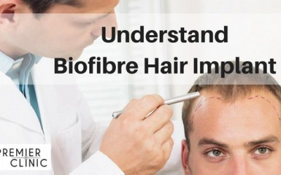 Biofibre Hair Implant FAQ