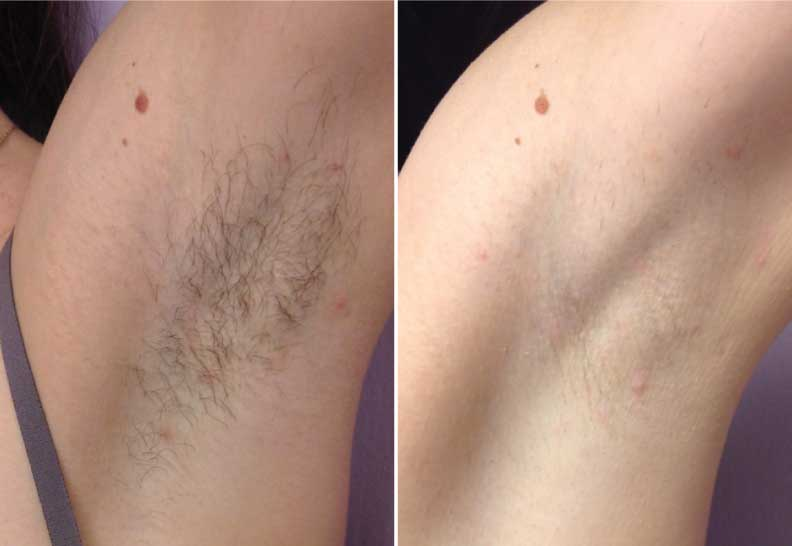 Laser-Hair-Removal-EvolvMD-Before-After-1