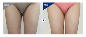 Non-Invasive Fat Freezing Thighs Results