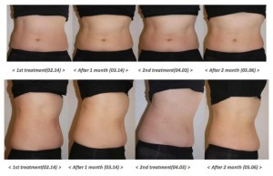 Benefits and Results of Lipocel