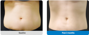 Abdominal Shape After Clatuu Treatment