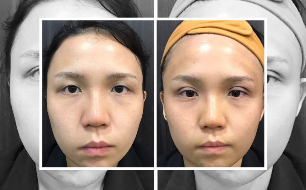 Before & after Double Eyelid